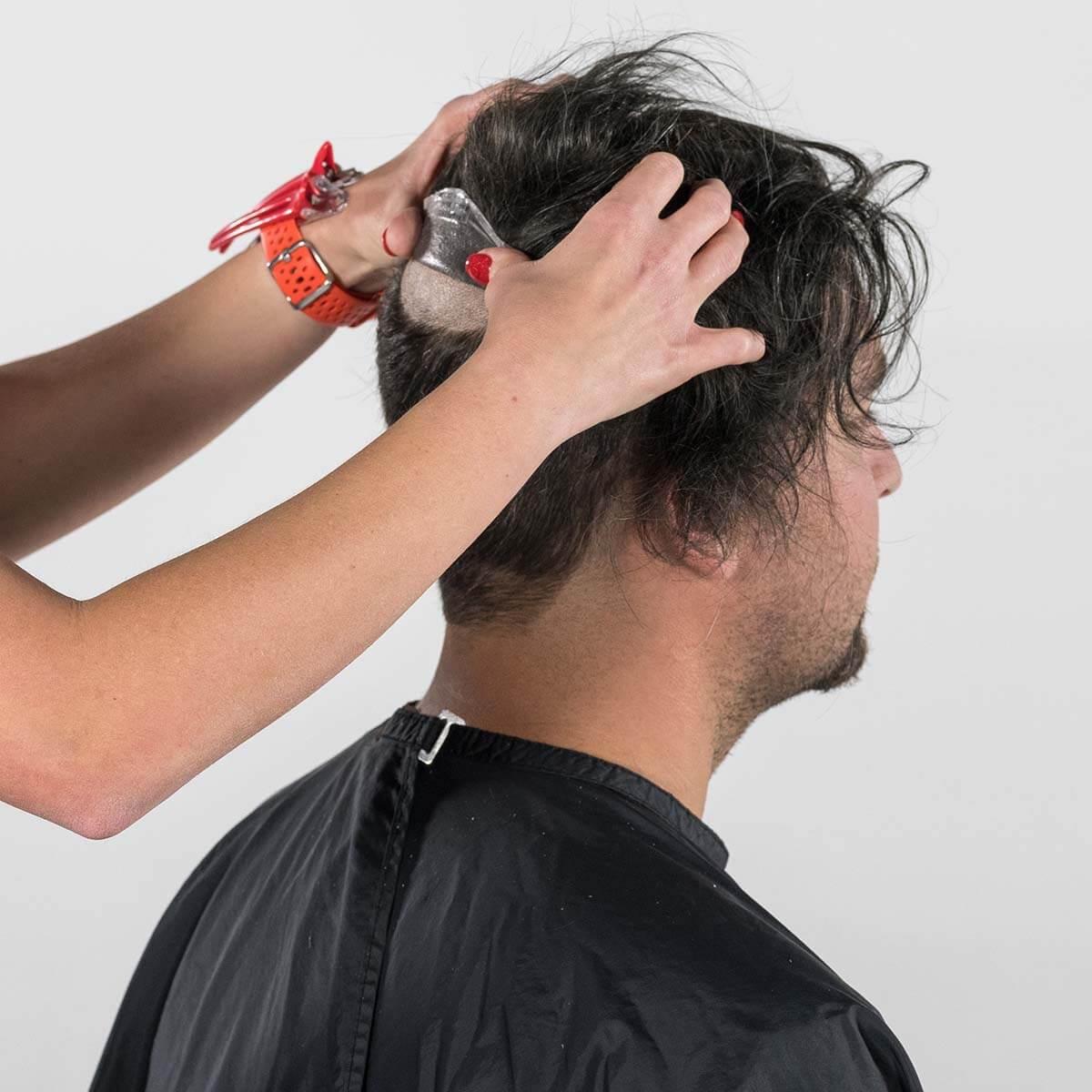 Befestigung des Haarersatzes am Hinterkopf