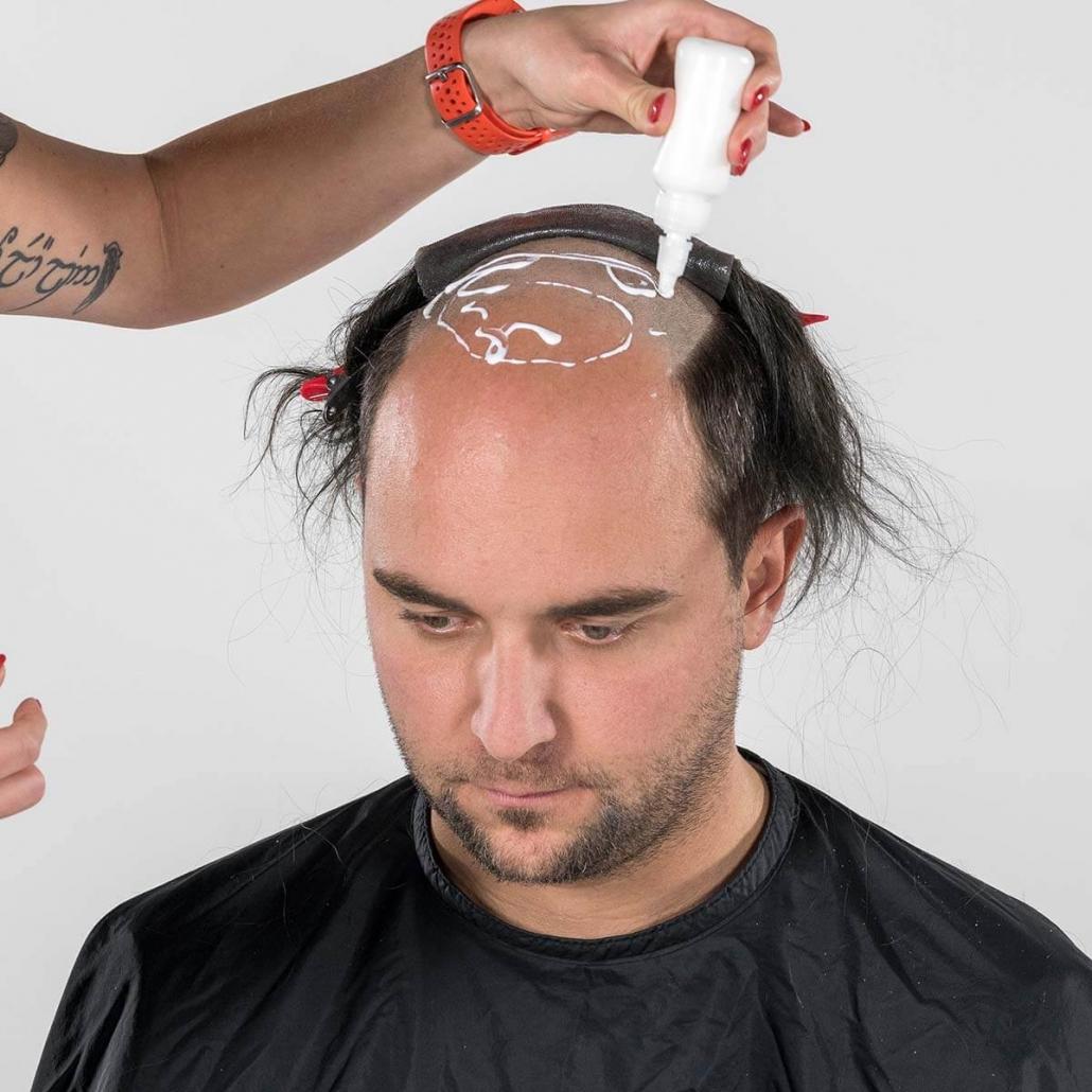Auftragen des atmungsaktiven Klebers am rasierten Hinterkopf