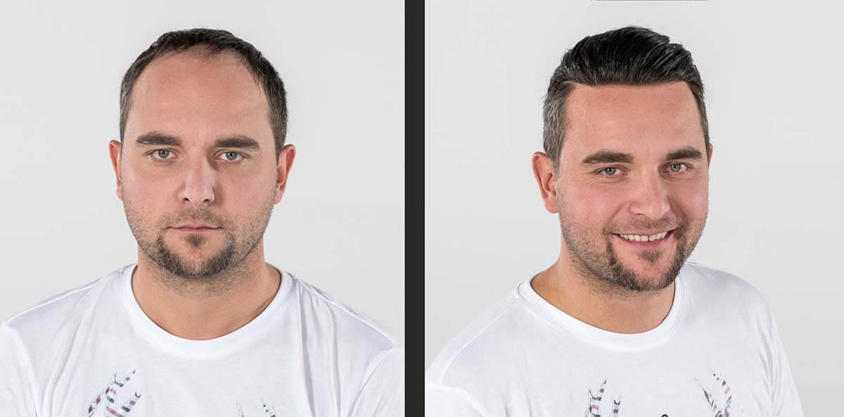 Revolutionäres, maßgeschneidertes Toupet für den Mann mit perfektem Ansatz (Vorher-Nachher-Vergleich)