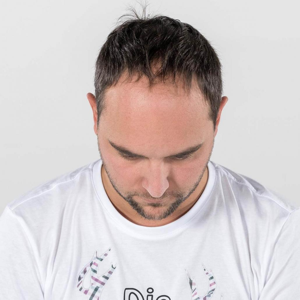 Mann ohne Toupet, altersbedingter Haarausfall (vorher)