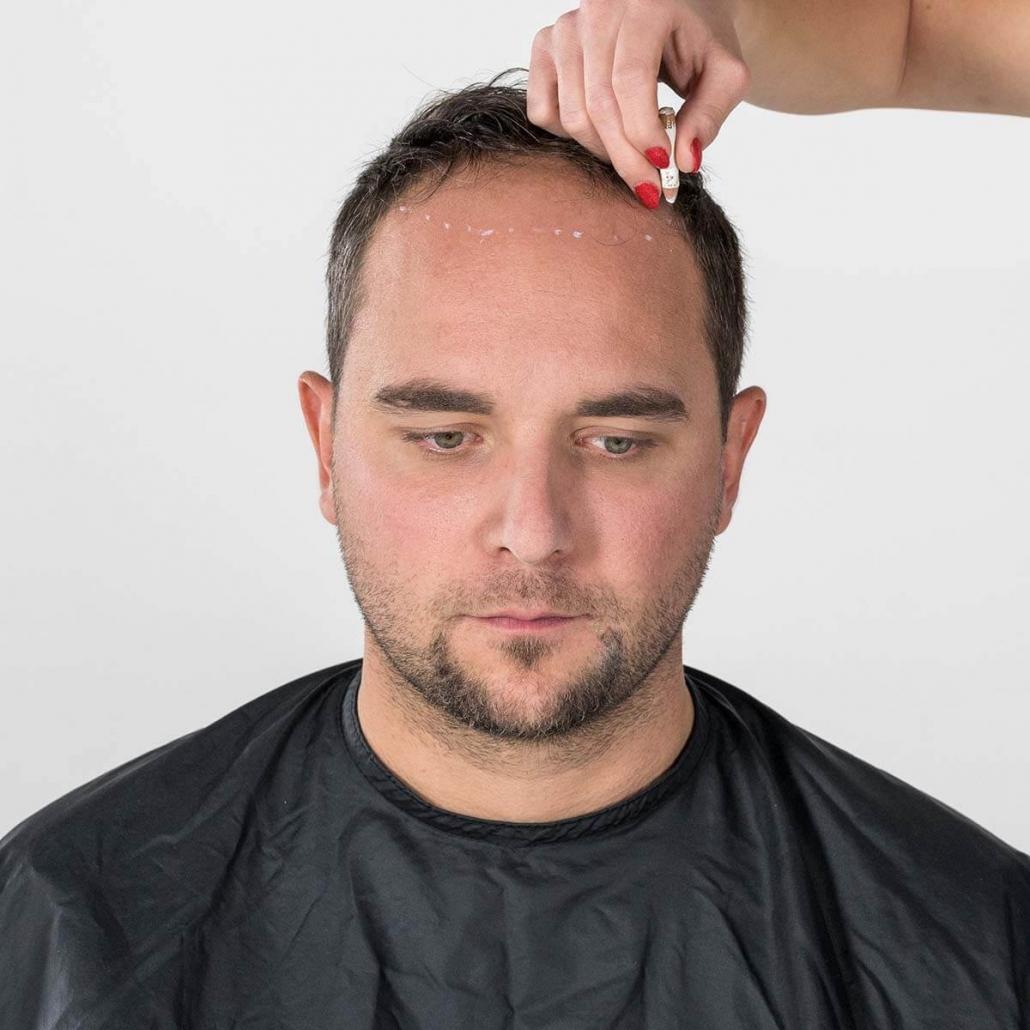 Anbringen der Markierung am Vorderkopf
