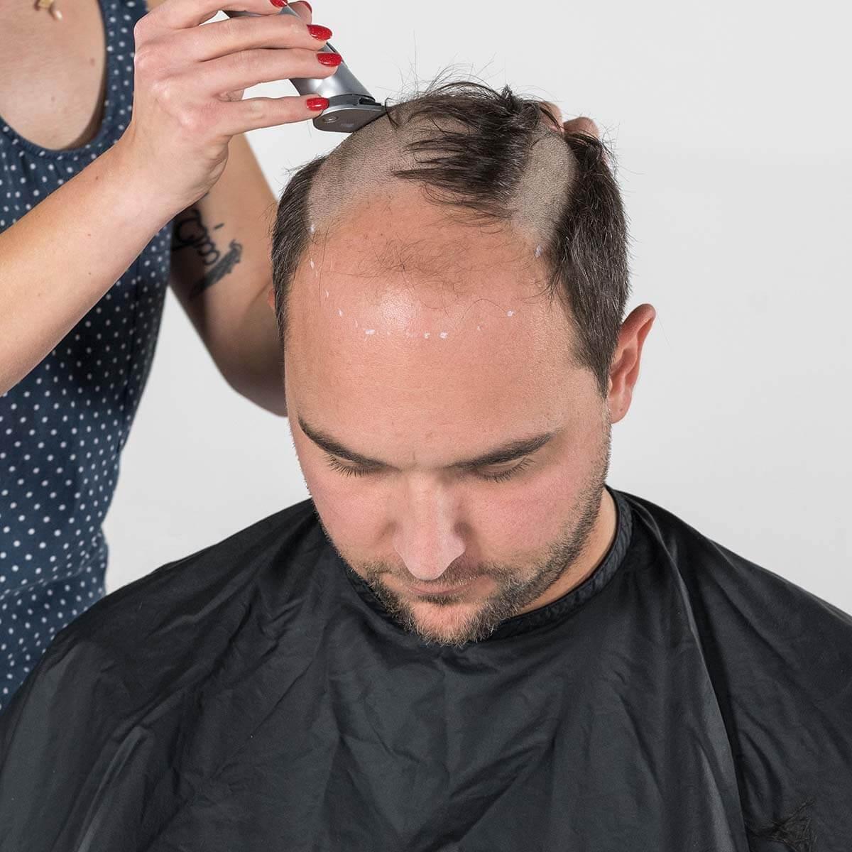 Abrasieren der Haare an den gekennzeichneten Stellen