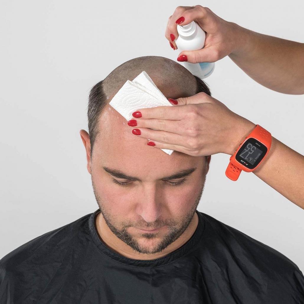 Desinfektion der rasierten Stelle