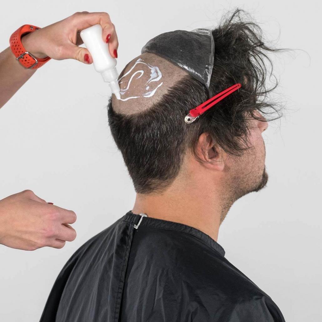 Auftragen des hautverträglichen Klebers am rasierten Hinterkopf